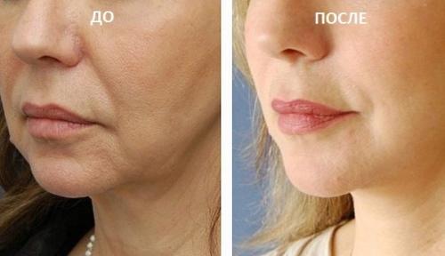Полимолочные нити для лица. Фото до и после, где купить, последствия