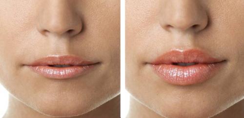 Редженесс (Rejeunesse) филлер для губ. Отзывы косметологов, где купить, цена