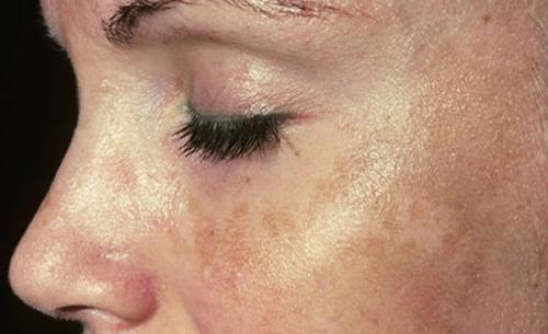Заживляющий крем для лица после прыщей, пилинга, чистки