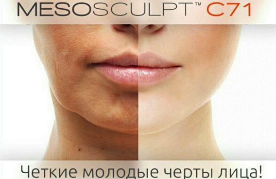Мезоскульпт С71 (Mesosculpt C71). Отзывы, фото до и после, цена